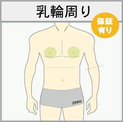男性の乳首周り脱毛(乳輪回り脱毛)