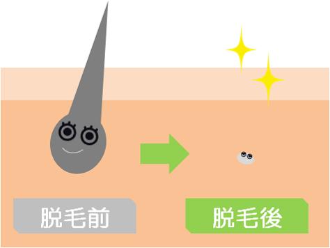 メンズ脱毛の効果と回数