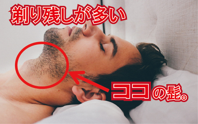 剃り残しが多い首周りの髭を脱毛するならゼロ小倉