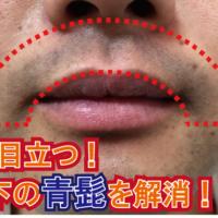 よく目立つ鼻下の青髭をヒゲ脱毛で解消