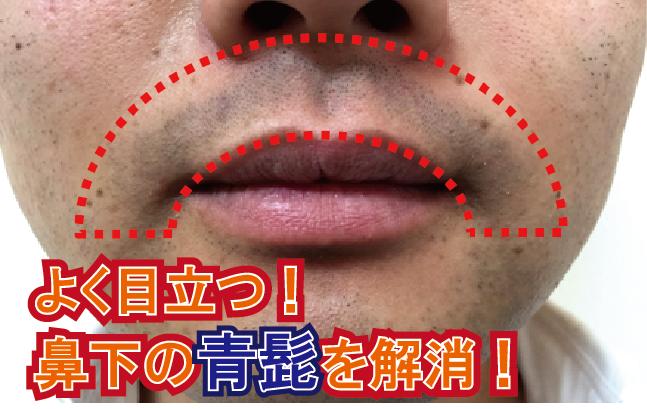 よく目立つ鼻下の青髭をヒゲ脱毛で解消 ヒゲ脱毛サロン小倉