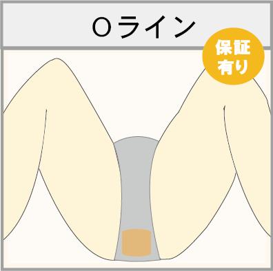 男性のOライン脱毛(肛門脱毛)