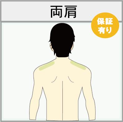 男性の肩脱毛