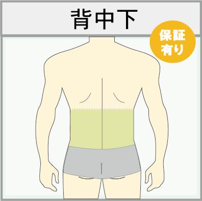 男性の背中下(腰脱毛)