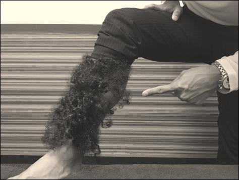 男性が夏場など薄着の季節に気になる足脱毛すね毛脱毛について