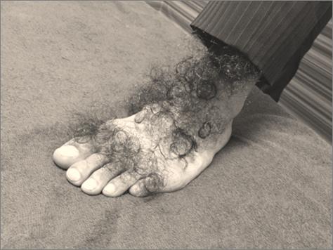 男性の手の甲脱毛、足の甲脱毛、指脱毛