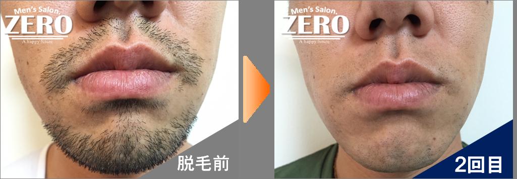 大阪市北区 金属業男性の鼻下脱毛とあご脱毛前の写真と脱毛2回目の経過写真