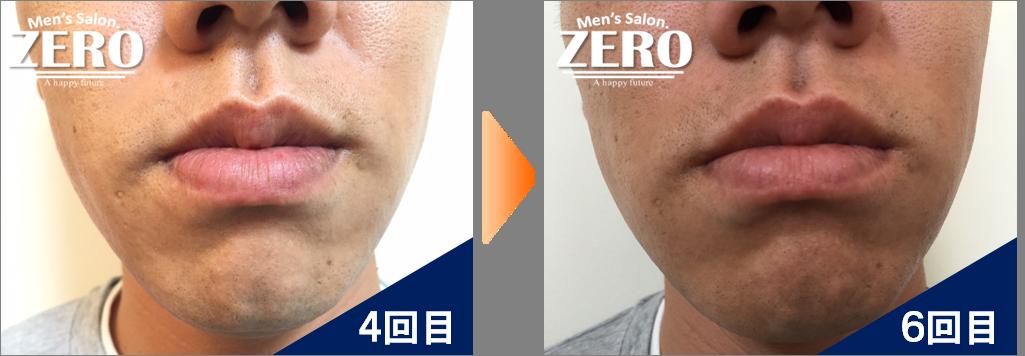 大阪市北区 金属業男性の鼻下脱毛とあご脱毛4回目の写真と6回目の経過写真