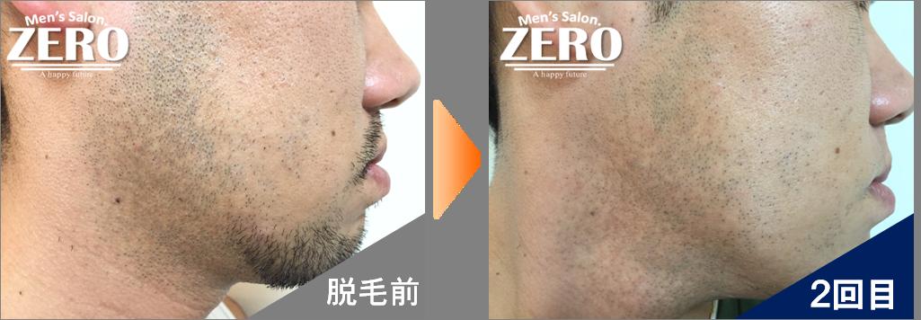 大阪市北区 金属業男性の両ほほ脱毛ともみあげ脱毛とフェイスライン脱毛前の写真と脱毛2回目の経過写真