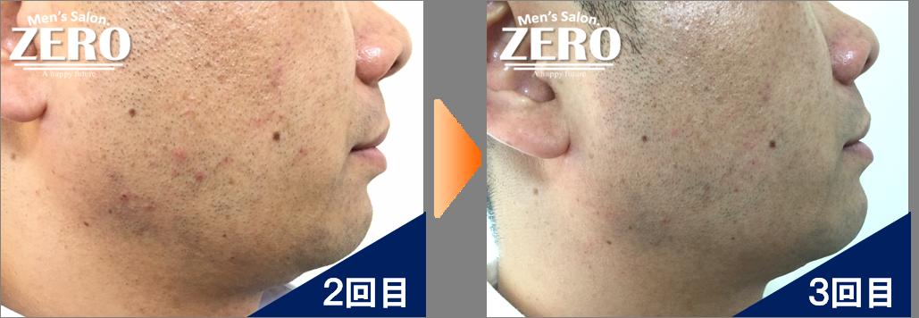大阪市都島区 会社経営男性の両ほほ脱毛とフェイスライン脱毛2回目の写真と脱毛3回目の経過写真