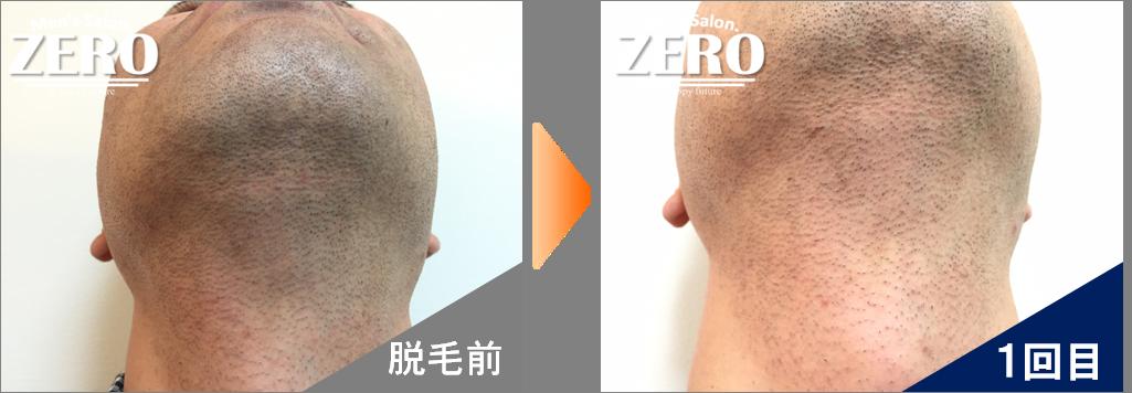 大阪市都島区 会社経営男性の両ほほ脱毛とあご裏脱毛と首周り脱毛前の写真と脱毛1回目の経過写真
