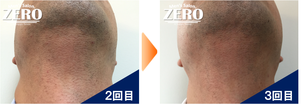 大阪市都島区 会社経営男性の両ほほ脱毛とあご裏脱毛と首周り脱毛2回目の写真と脱毛3回目の経過写真