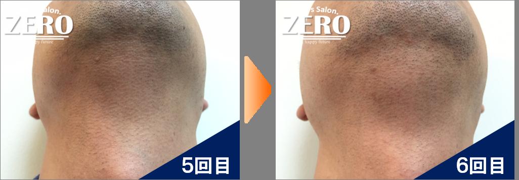 大阪市都島区 会社経営男性の両ほほ脱毛とあご裏脱毛と首周り脱毛5回目の写真と脱毛6回目の経過写真