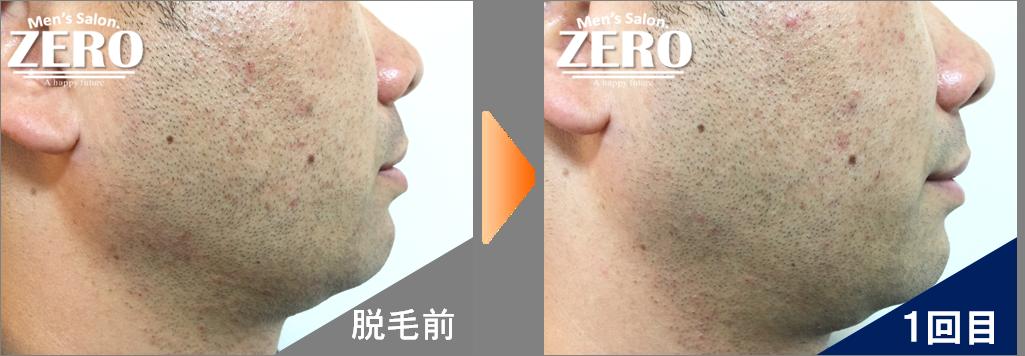 大阪市都島区 会社経営男性の両ほほ脱毛とフェイスライン脱毛前の写真と脱毛1回目の経過写真