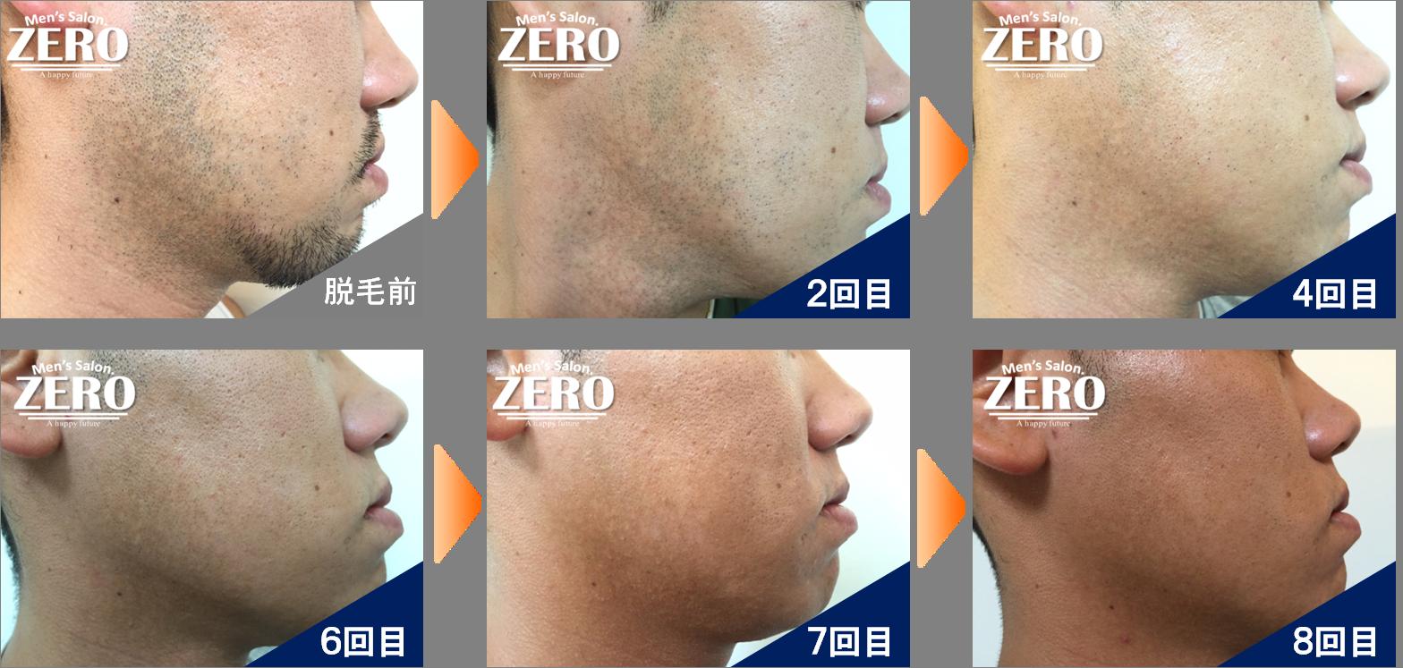 長崎諫早店 ヒゲ脱毛(頬、もみあげ、フェイスライン) 写真