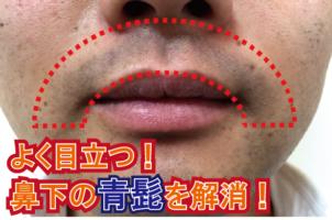 よく目立つ青髭を解消!人気の鼻下脱毛