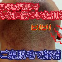 ヒゲ剃り負けの男性もゼロ小倉店のあご裏ヒゲ脱毛で悩みを解消
