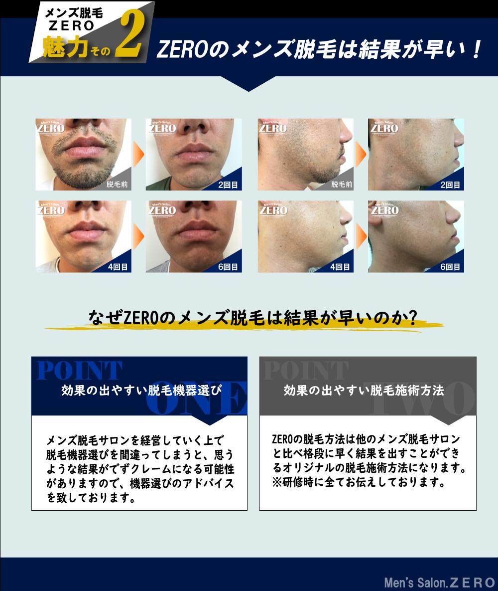 ZEROのメンズ脱毛は結果が早い!なぜZEROのメンズ脱毛は結果が早いのか?効果の出やすい脱毛機器選び。メンズ脱毛サロンを経営していく上で脱毛機器選びを間違ってしまうと、思うような結果がでずクレームになる可能性がありますので、機器選びのアドバイスを致しております。効果の出やすい脱毛施術方法。ZEROの脱毛方法は他のメンズ脱毛サロンと比べ格段に早く結果を出すことができるオリジナルの脱毛施術方法になります。※研修時に全てお伝えしております。