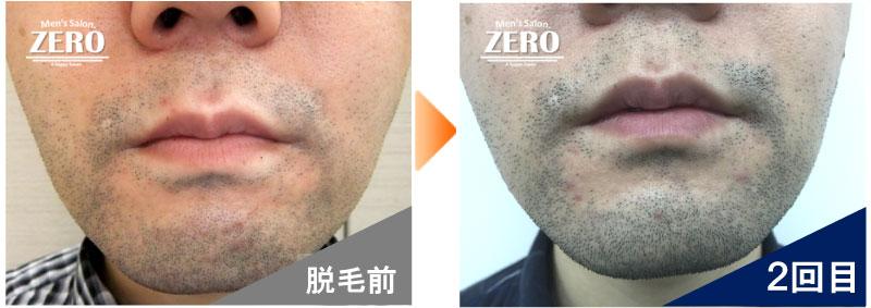 大阪市天王寺区 ショップ経営男性の鼻下脱毛とあご脱毛前の写真と脱毛2回目の写真