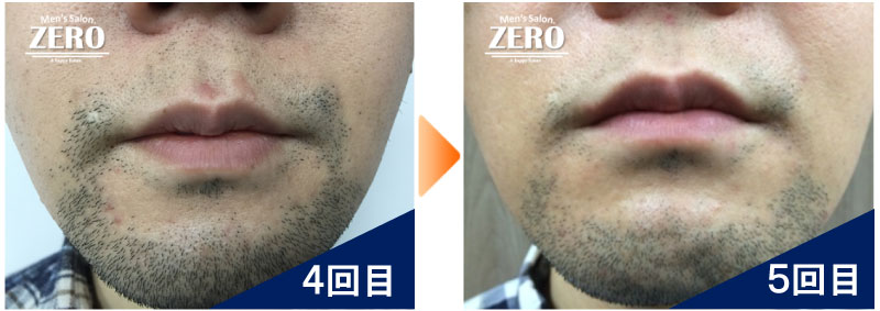 大阪市天王寺区 ショップ経営男性の鼻下脱毛とあご脱毛4回目の写真と脱毛5回目の経過写真