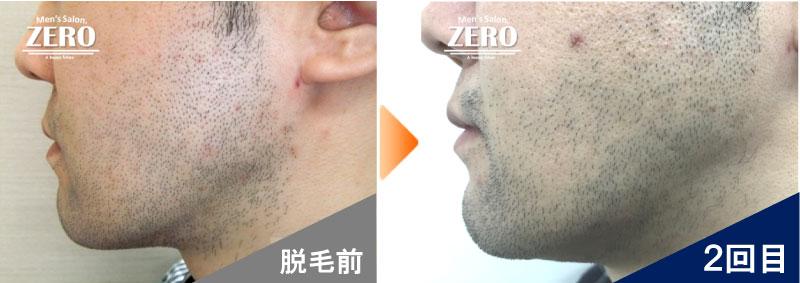 大阪市天王寺区 ショップ経営男性の頬脱毛とフェイスライン脱毛前の写真と脱毛2回目の経過写真