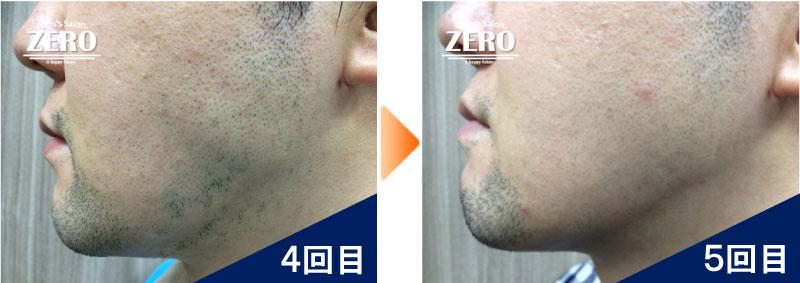 大阪市天王寺区 ショップ経営男性の頬脱毛とフェイスライン脱毛4回目の写真と脱毛5回目の経過写真