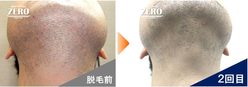 大阪市天王寺区 ショップ経営男性のあご脱毛とあご裏脱毛、首周り脱毛前の写真と脱毛2回目の経過写真
