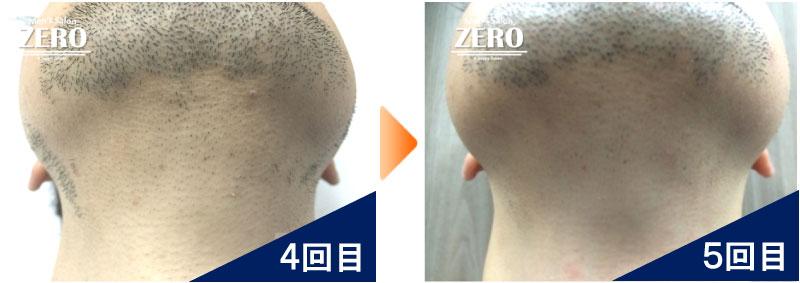 大阪市天王寺区 ショップ経営男性のあご脱毛とあご裏脱毛、首周り脱毛4回目の写真と脱毛5回目の経過写真