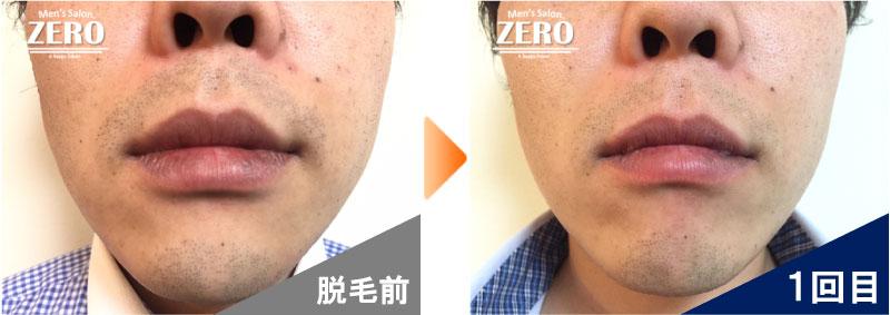 大阪市中央区 金融業男性の鼻下脱毛とあご脱毛前の写真と脱毛1回目の経過写真
