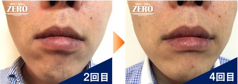 大阪市中央区 金融業男性の鼻下脱毛とあご脱毛2回目の写真と脱毛4回目の経過写真