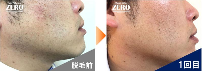 大阪市中央区 金融業男性の両ほほ脱毛とフェイスライン脱毛前の写真と脱毛2回目の経過写真