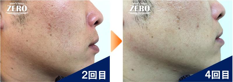 大阪市中央区 金融業男性の両ほほ脱毛、フェイスライン脱毛2回目の写真と脱毛4回目の経過写真
