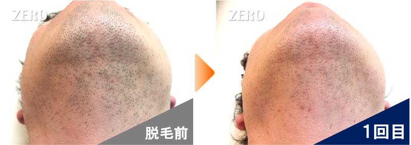大阪市中央区 金融業男性のあご脱毛とあご裏脱毛前の写真と脱毛2回目の経過写真