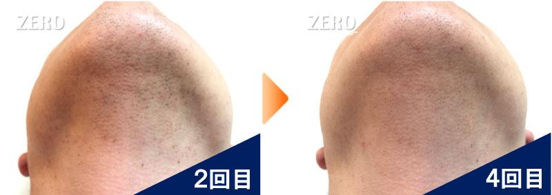 大阪市中央区 金融業男性のあご脱毛とあご裏脱毛2回目の写真と脱毛4回目の経過写真