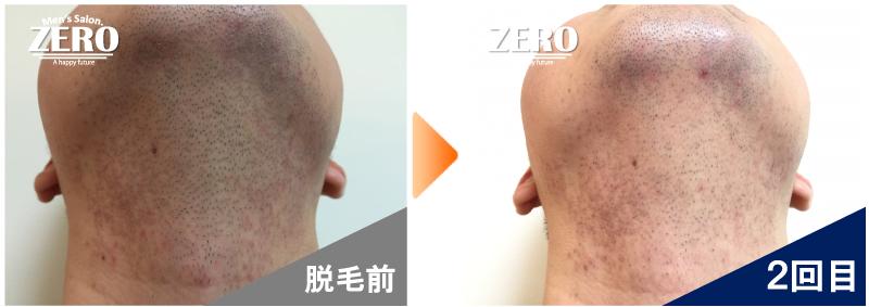 大阪市中央区 30代後半 貿易会社役員男性のあご裏脱毛と首脱毛前の写真と脱毛2回目の経過写真