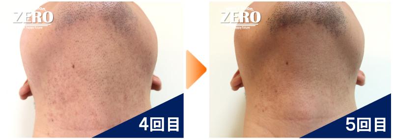 大阪市中央区 30代後半 貿易会社役員男性のあご裏脱毛と首脱毛4回目の写真と脱毛5回目の経過写真