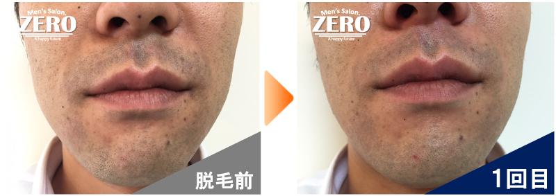 大阪市天王寺区 保険業男性の鼻下脱毛とあご脱毛前の写真と脱毛1回目の経過写真