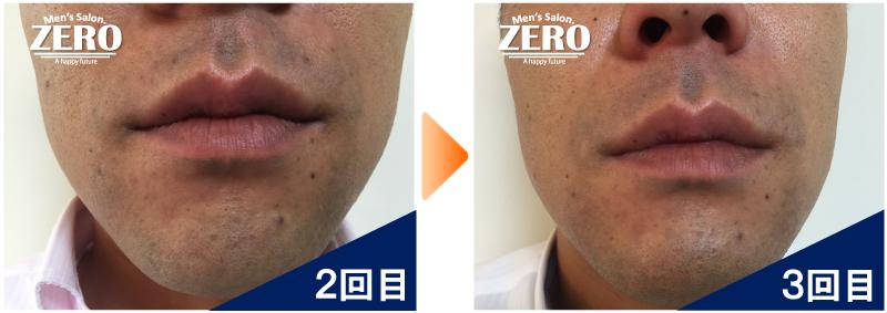 大阪市天王寺区 保険業男性の鼻下脱毛とあご脱毛2回目の写真と脱毛3回目の経過写真