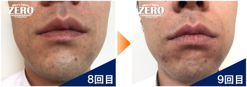 大阪市天王寺区 保険業男性の鼻下脱毛とあご脱毛8回目の写真と脱毛9回目の経過写真