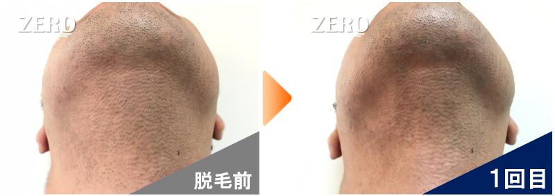大阪市天王寺区 保険業男性のあご裏脱毛・首周り脱毛前の写真と脱毛1回目の経過写真