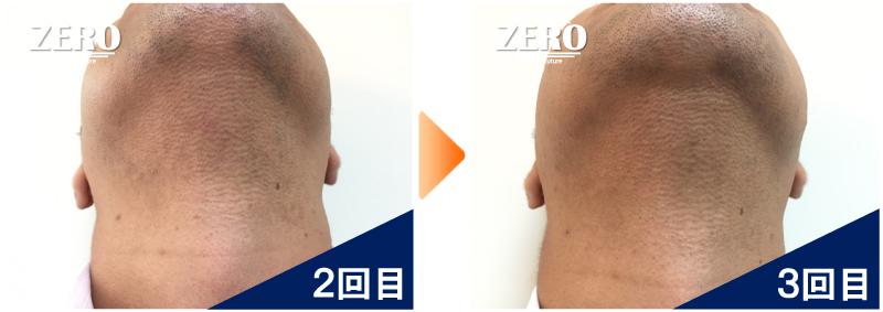 大阪市天王寺区 保険業男性のあご裏脱毛・首周り脱毛2回目の写真と脱毛3回目の経過写真