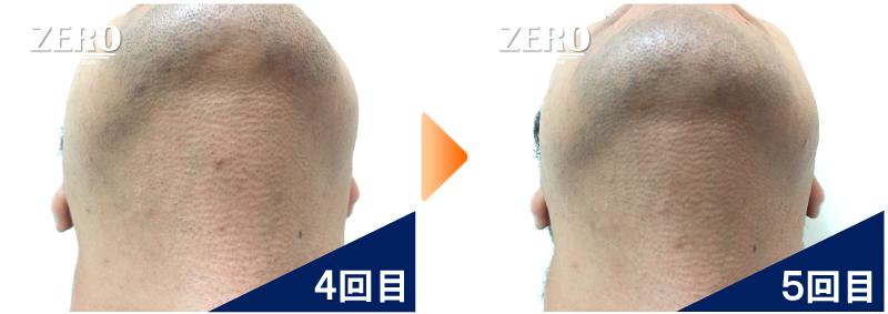 大阪市天王寺区 保険業男性のあご裏脱毛・首周り脱毛4回目の写真と脱毛5回目の経過写真