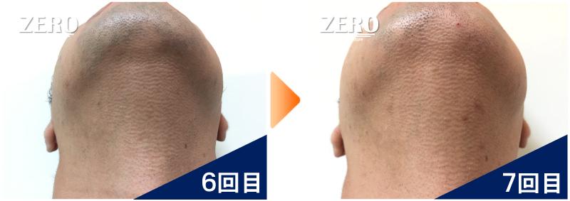大阪市天王寺区 保険業男性のあご裏脱毛・首周り脱毛6回目の写真と脱毛7回目の経過写真