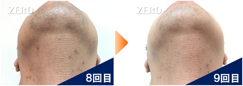 大阪市天王寺区 保険業男性のあご裏脱毛・首周り脱毛8回目の写真と脱毛9回目の経過写真
