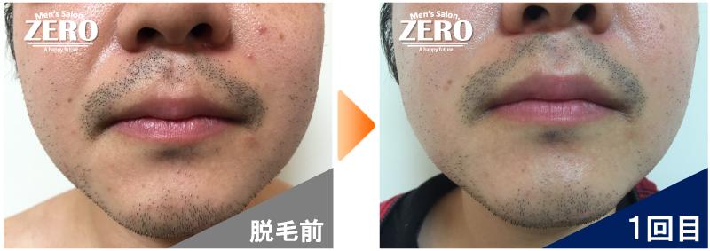 大阪府東大阪市 鉄道会社勤務男性の鼻下脱毛とあご脱毛前の写真と脱毛1回目の経過写真