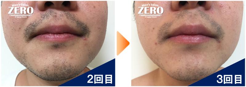 大阪府東大阪市 鉄道会社勤務男性の鼻下脱毛とあご脱毛2回目の写真と脱毛3回目の経過写真