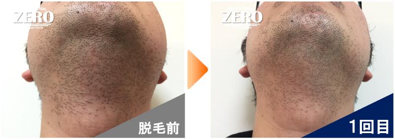 大阪府東大阪市 鉄道会社勤務男性のあご裏脱毛・首周り脱毛前の写真と脱毛1回目の経過写真