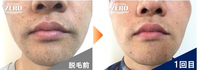 大阪市北区 不動産会社 勤務男性の鼻下脱毛とあご脱毛前の写真と脱毛1回目の経過写真