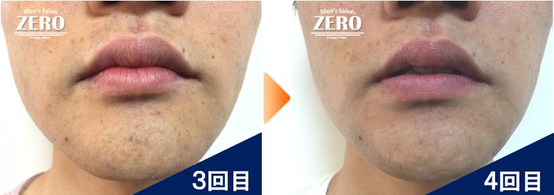 大阪市北区 不動産会社 勤務男性の鼻下脱毛とあご脱毛3回目の写真と脱毛4回目の経過写真