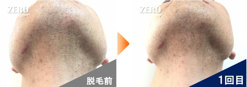 大阪市北区 不動産会社 勤務男性のあご裏脱毛と首周り脱毛前の写真と脱毛1回目の経過写真